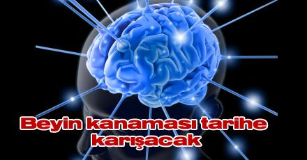 Beyin kanaması tarihe karışacak