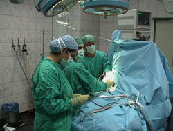 Organ naklinde devrim