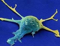 Kanseri kökten bitirecek tedavi