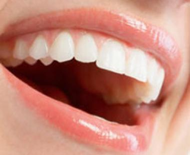 Beyaz dişler için pratik öneriler!