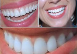 Dişlerle ilgili 30 doğru ve yanlış
