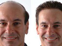 İzmir Saç Ekimi Tedavi Merkezleri