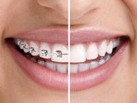 Ortodonti Tedavisi Ne Kadar Sürer?